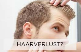 men-haarverlust